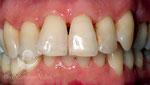 Antes:espacios negros entre los dientes tras el tratamiento periodontal