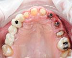 Vista arcada superior tras el tratamiento de ortodoncia, periodoncia y colocación de los implantes