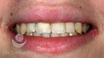 Sonrisa con la corona provisional inmediata ya colocada sobre el implante