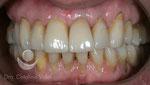 Después: tratamiento terminado con coronas cerámicas sobre dientes e implantes