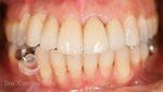 Después: tratamiento terminado después de realizar ortodoncia, colocación de un implante y rehabilitación con coronas sobre dientes e implante
