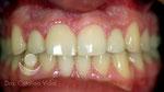 Después: tratamiento finalizado con coronas cerámicas sobre los implantes