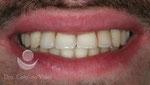 Después: sonrisa