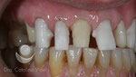 Implantes colocados sustituyendo el incisivo y un premolar. Prueba de estructura de las coronas