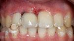Implante y corona provisional inmediata. El mismo día se coloca el implante y la corona
