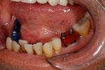 Abdrucküberprüfung für ZrO Implant Bridge