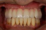 Implant Bridge Titan mit konfekt. Zähnen und Kunststoff fertiggestellt