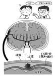 くも膜下腔 硬膜 瘤