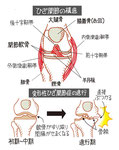 膝関節 変形性膝関節症