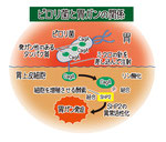 ピロリ菌と胃がんの関係