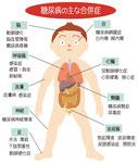 糖尿病の主な合併症 脳 目 呼吸器 心臓 皮膚 腎臓 神経 泌尿器 足