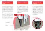 Implantatprophylaxe 2