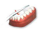 Danach zur Zahnreihen innen übergehen. ( ©proDente e.V. )