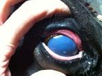Edema corneal difuso con úlcera puntiforme.