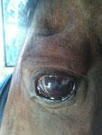 Laceración esclero corneal cicatrixada por segunda intención