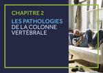 CHAPITRE 2 LES PATHOLOGIES DE LA COLONNE VERTÉBRALE