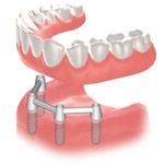 下顎総義歯の維持に4本のインプラントをバーで結合しこれを利用した場合