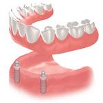 下顎総義歯の維持に2本のインプラントにボールアタッチメントを使用した場合