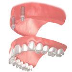 上顎総義歯の維持に2本のインプラントにボールアタッチメントを使用した場合