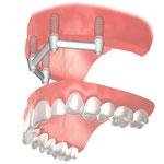 上顎総義歯の維持に4本のインプラントをバーで結合しこれを利用した場合