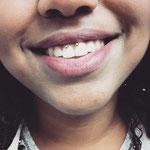 smiley piercing par Piou abitbol chez lucky30 à nimes