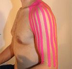 Lymphanlage