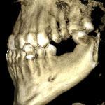 3 dimensionales CT mit Zahnlücke