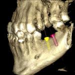 3 dimensionales CT nach Einzetzen am PC von 2 digitale Implantate - Wangenseite
