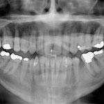 Das Panoramabild zeigt die Gesamtsituation im Mund