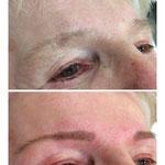 Augenbrauen-Neugestaltung durch zupfen und Vorzeichnung