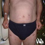 Abgestorbene Haut durch Injektionen mit Interferon