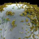 Bakterien auf einer Nadelspitze