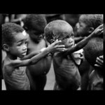 Mangelernährung