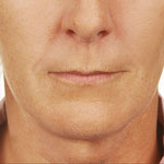 Byonikanwendung im Gesicht nach 4 Behandlungen
