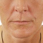 Byonikanwendung im Gesicht vorher