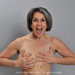 Nathalie, avant une opération de reconstruction.