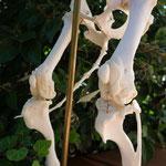 """'Sir Henrys' Kniearthrose, """"schön"""" zu sehen sind hier die Knochenzubildungen"""