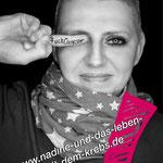 """""""Nadine und das Leben mit dem Krebs"""""""