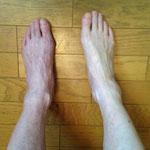 片足施術終了時の違い。