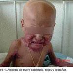 Alopecia de cuero cabelludo, cejas y pestañas