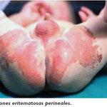 Lesiones eritematosas perineales