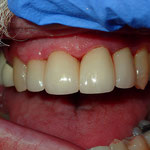 Cosmetic crowns to close spaces and hide exposed roots