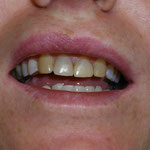 stained front teeth