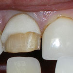 Broken Veneer and Crown with a leaking margin near the gumline.  Both teeth were repaired with new cosmetic crowns.