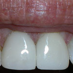 New cosmetic crowns on both front teeth