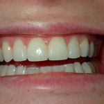 Fuller appearance to front teeth