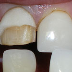 Broken crown on front tooth