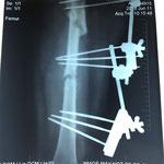 AVP moto, fractures fémur avec fixateur externe