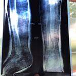 Fracture tibia plâtrée