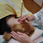 Ohrenkerzenbehandlung